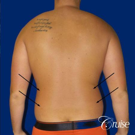 Best  before and after lipo photos of guys - Before and After Image 4