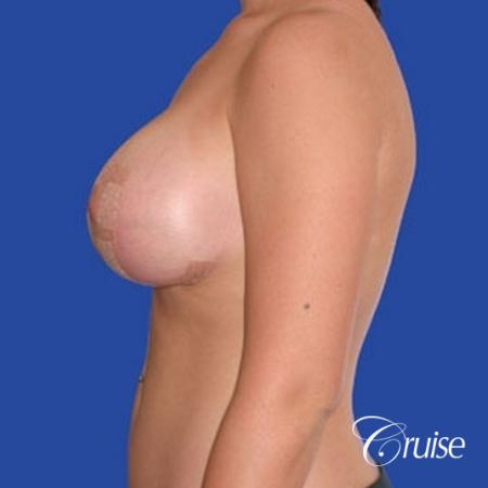 best before and after of silicone breast lift anchor in Newport Beach -  After Image 3