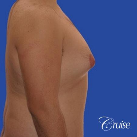 moderate gynecomastia with pointy nipples male - Before and After Image 4