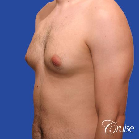20 year old with moderate gynecomastia - Before Image 3