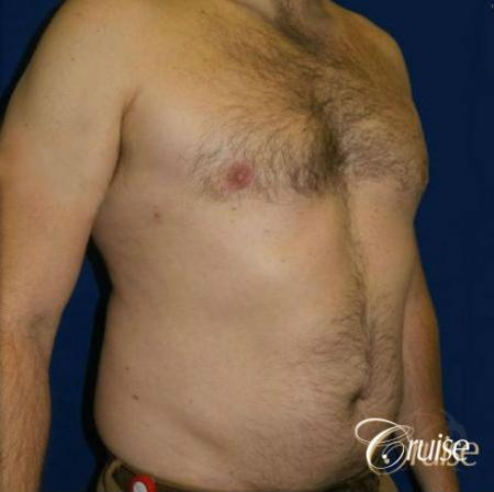 male breast reduction surgery -  After Image 2