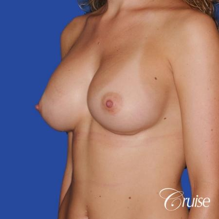 best pictures of breast revision for capsular contracture -  After Image 1