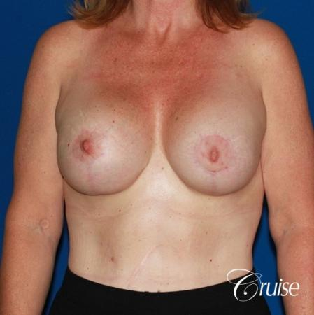 best anchor breast lift with specialist and plastic surgeon -  After Image 1