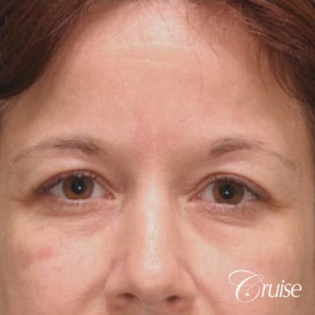 best brow temple lift pictures - Before Image