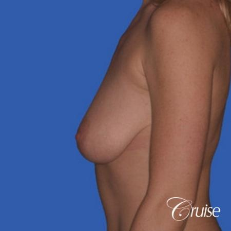 no implants with breast lift anchor - Before and After Image 2