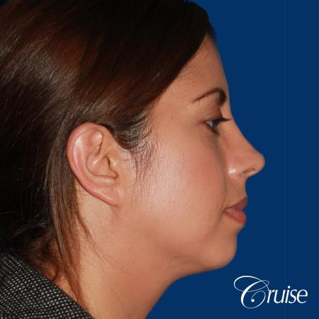 woman with large anatomic chin implant - Before and After Image 3