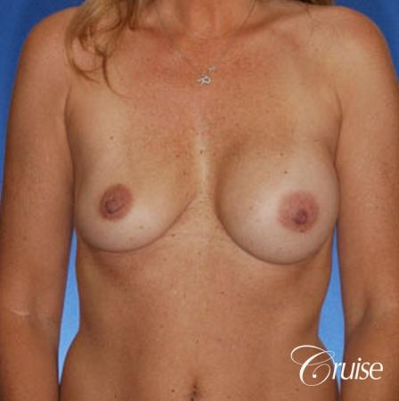 best revision on a saline breast implant rupture - Before Image 1