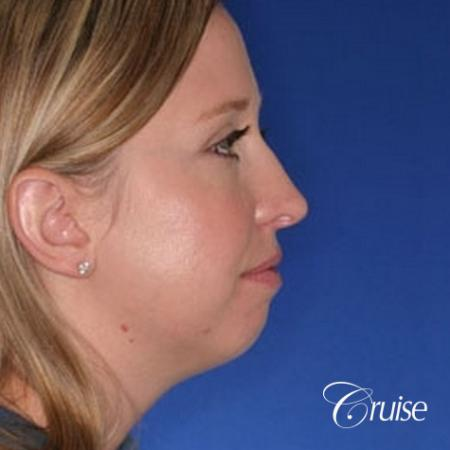 best plastic surgeon for chin augmentation implant - Before Image 2