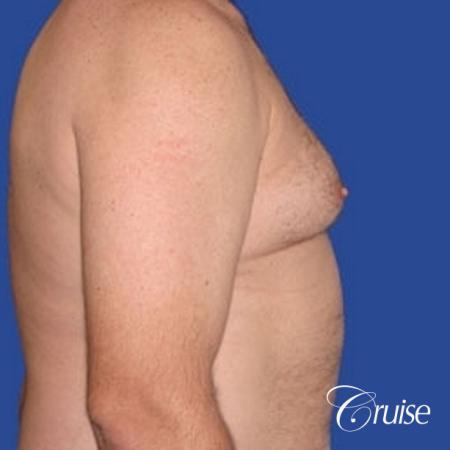 chest liposuction on adult - Before Image 3