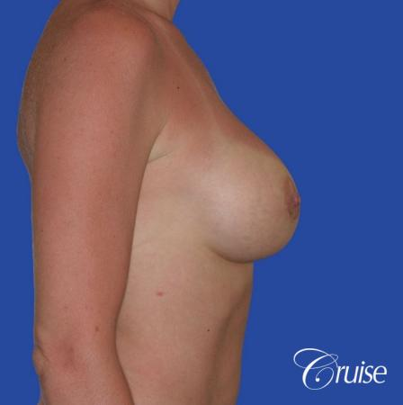 breast revision with silicone implant rupture -  After Image 3