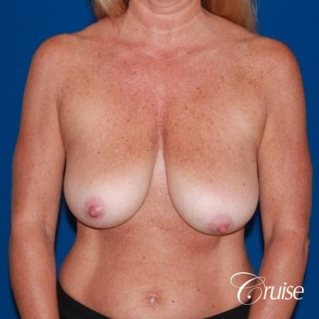 Breast Lift - Saline Augmentation - Before Image 1