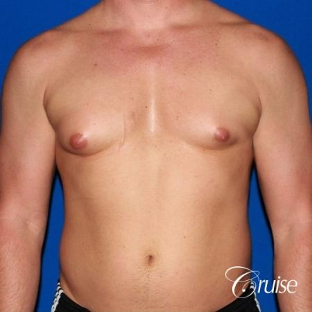 body builder with Gynecomastia puffy nipple - Before Image 1