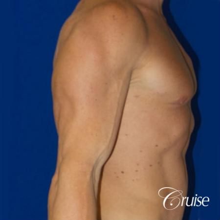 Gynecomastia before and after pictures -  After Image 2