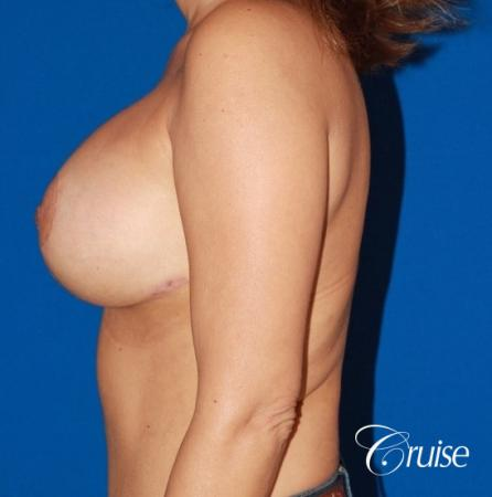 best saline breast lift with 470cc implants -  After Image 2