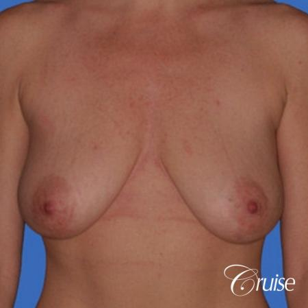 best breast reduction without implants - Before Image 1