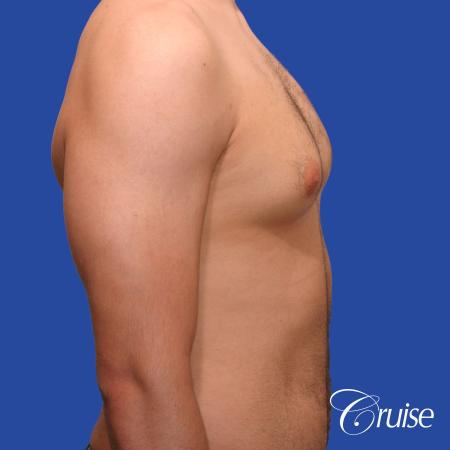 20 year old with moderate gynecomastia - Before Image 4