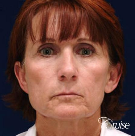 Facelift - Before Image