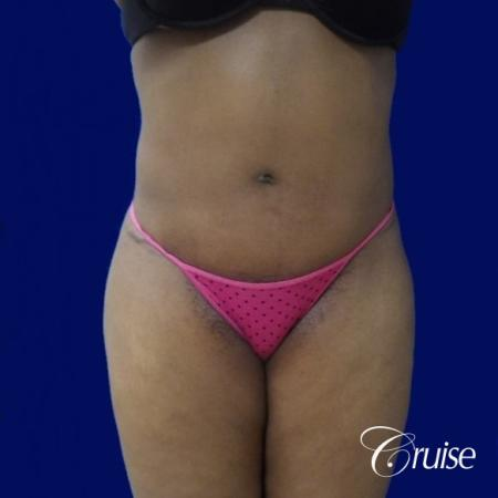 Liposuction Flanks - After