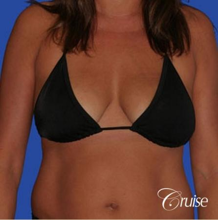 photos of best breast lift anchor with saline implants in Newport Beach - Before and After Image 3