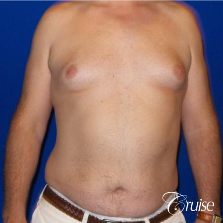 gynecomastia surgery results - Before 1