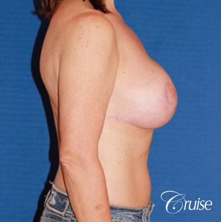 best breast reduction surgery with saline implants -  After Image 3