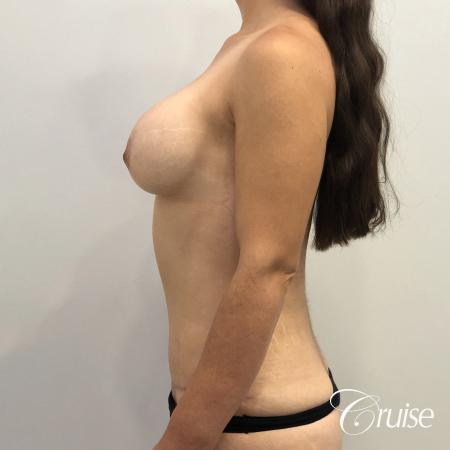 Breast Augmentation, Tummy Tuck -  After Image 2