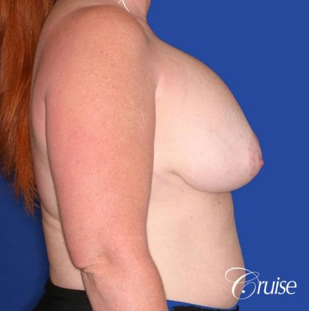 capsular contracture before and after pictures in Newport Beach - Before Image 3