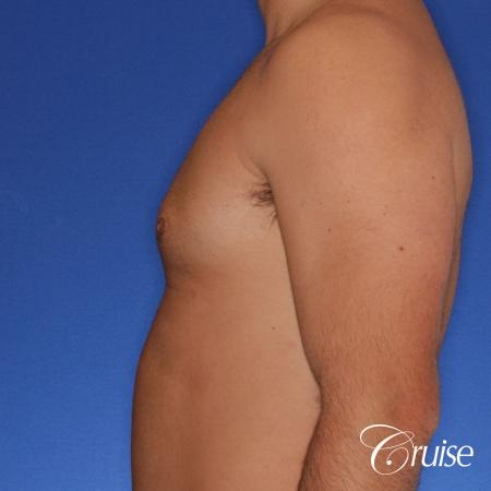 male patient has mild gynecomastia -  After Image 2