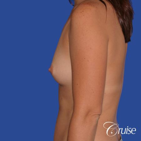 Breast Augmentation - Before and After 2
