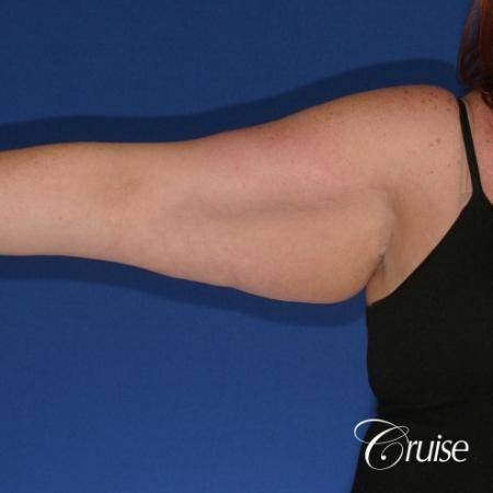 best recovery and photos of arm lift orange county - Before Image 3