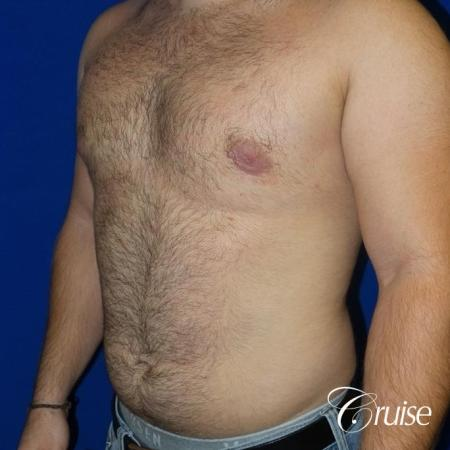 best gynecomastia results -  After Image 2