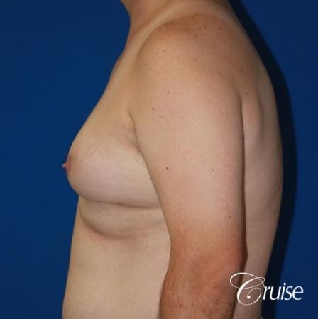 male breast severe gynecomastia free nipple graft anchor - Before Image 2
