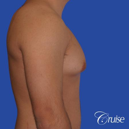 mild case of gynecomastia on adult - Before and After Image 3