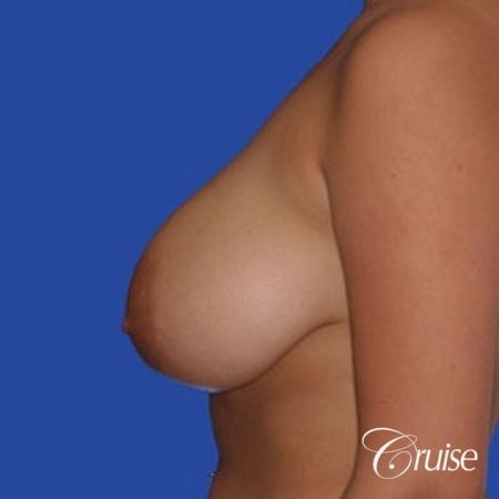 best 19 yr old breast reduction results - Before Image 2