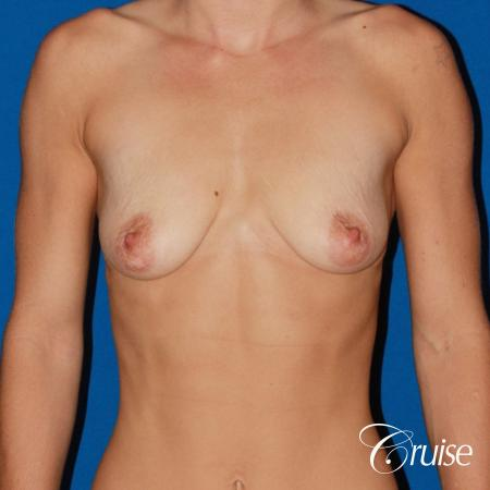 best pictures of young patients with silicone breast lift anchor - Before Image 1
