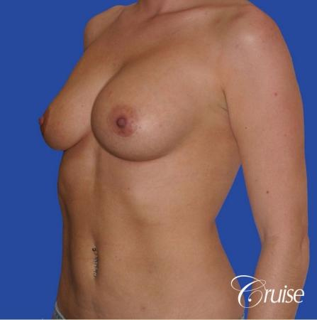 breast revision with silicone implant rupture - Before Image 2