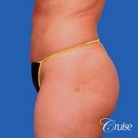 best liposuction abdomen, flanks and thighs -  After Image 2