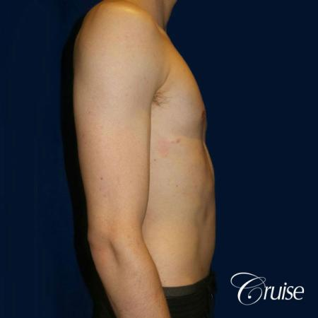 Top Gynecomastia Specialist Dr. Cruise -  After Image 4