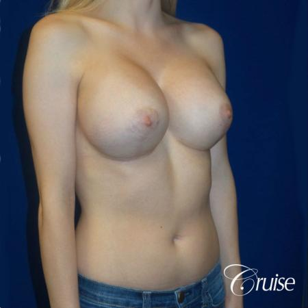 Breast Lift before and after Orange County -  After Image 2