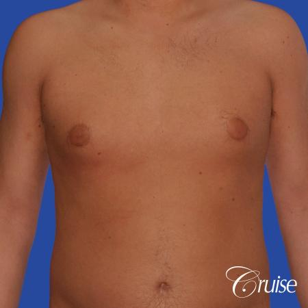 best puffy nipple gynecomastia results with plastic surgeon, Joseph Cruise, M.D. - Before Image 1