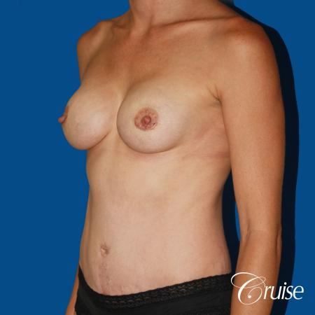 best ultra low tummy tuck scar with breast augmentation -  After 3