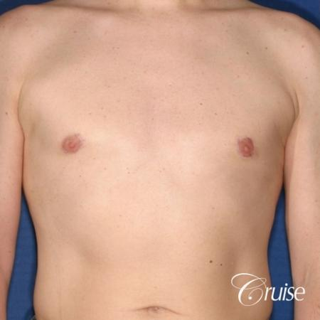 moderate gynecomastia on adult donut lift -  After Image 1