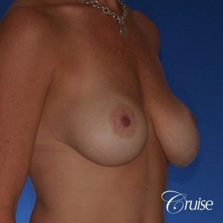Best breast revision for low implants - Before Image 3