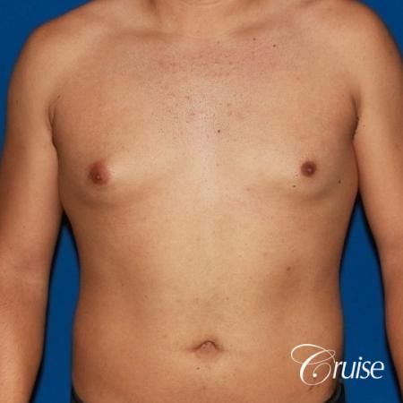 puffy nipple on 26 year old with gynecomastia - Before Image 1