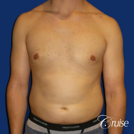 gyne before and afters orange county ca -  After Image 1