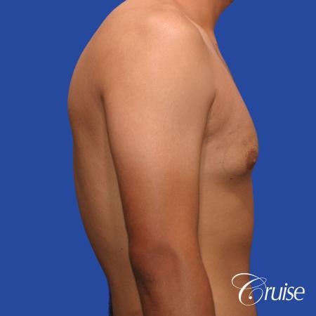 mild gynecomastia standard PA areola incision - Before Image 4