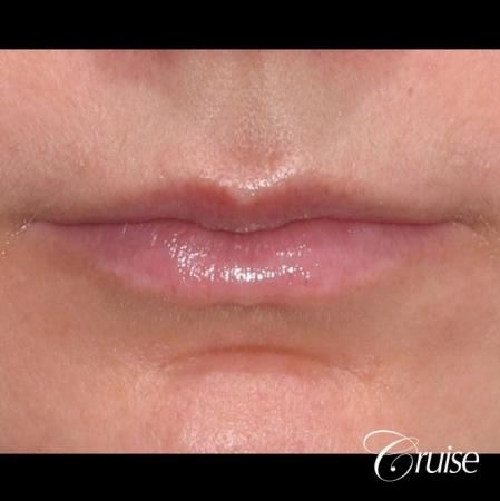 best fillers plastic surgeon does lip augmentation - Before Image