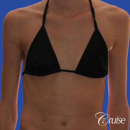Breast Augmentation - Before and After Image 4