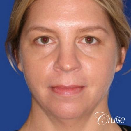 female who got large chin implant in Newport Beach - Before Image 1