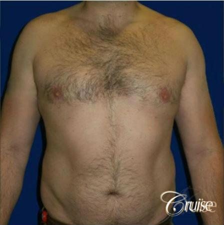 male breast reduction surgery -  After Image 1